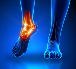 TexStar Chiropractic's Peripheral Neuropathy Treatment in Austin, TX